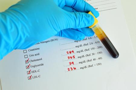 lipoprotein: High lipid profile result Stock Photo