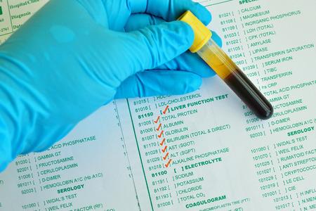 肝機能検査のための採血