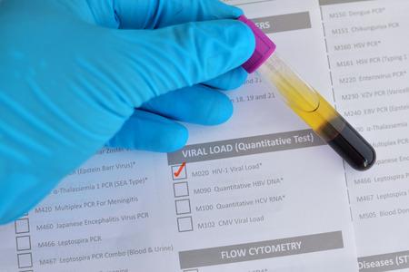 nat: HIV viral load testing