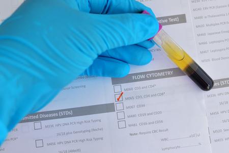 cytotoxic: Blood sample for CD3, CD4, CD8 testing