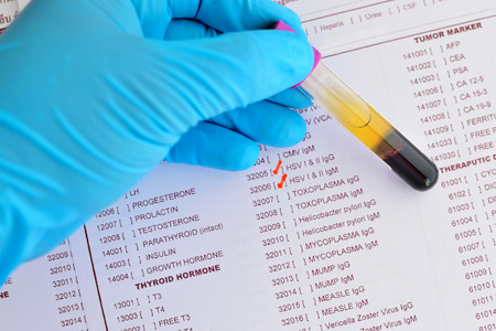 herpes simplex: Herpes testing