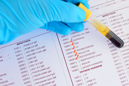 cancer research: Sex hormone testing Stock Photo