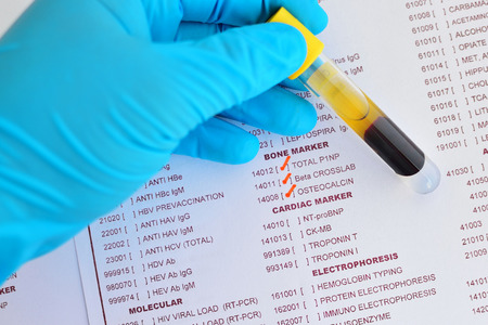 bone cancer: Blood sample for bone marker testing
