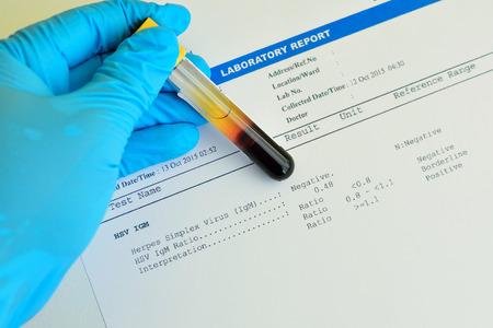 Herpes testing result