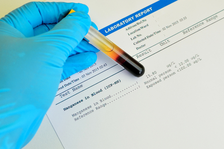 toxicology: Blood sample with manganese testing result Stock Photo