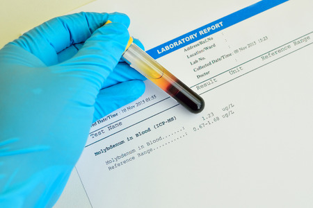 toxicology: Blood sample with molybdenum testing result