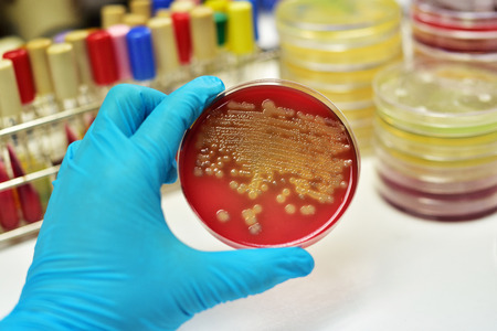 technologist: Colony of bacteria in culture medium plate