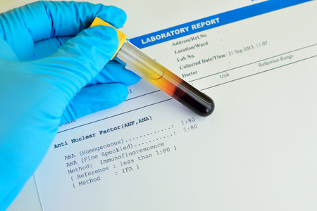 Autoimmune testing result