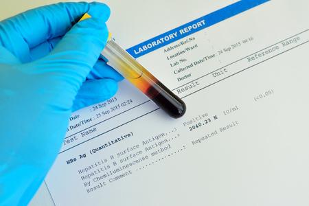 hepatitis: Hepatitis B testing result