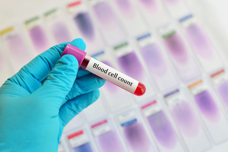 thrombocytopenia: Blood sample for cell count test Stock Photo