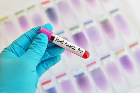plasmodium: Blood for malaria parasite test