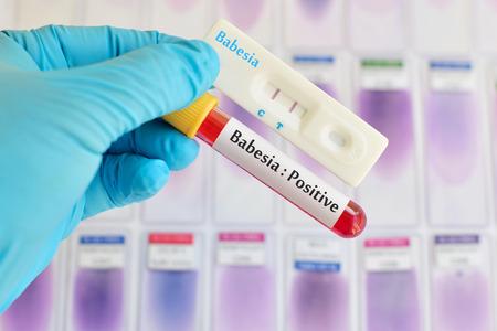 protozoan: Babesia testing positive