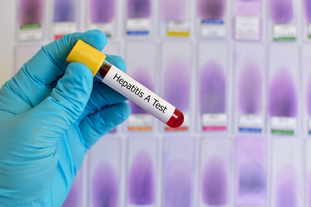 antigen: Blood for hepatitis A testing Stock Photo
