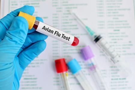 avian: Blood for Avian Flu test