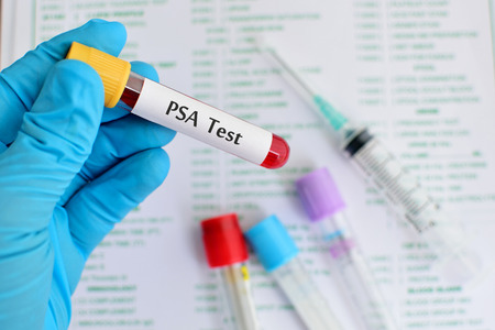 PSA, Prostate cancer test