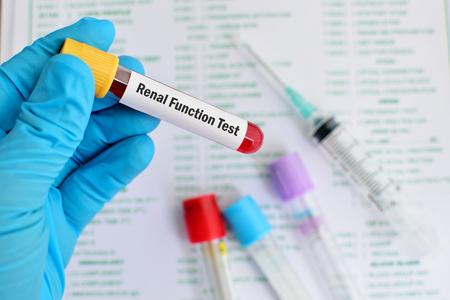 renal: Renal function test Stock Photo