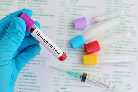 thrombocytopenia: Blood for hematocrit test