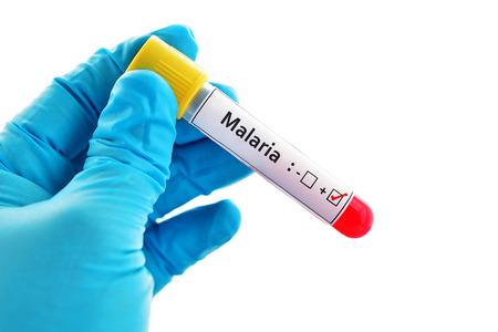 malaria: Malaria positive blood sample Stock Photo