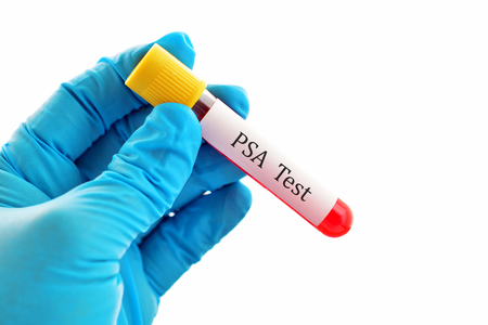 psa: Blood for PSA prostate cancer test Stock Photo