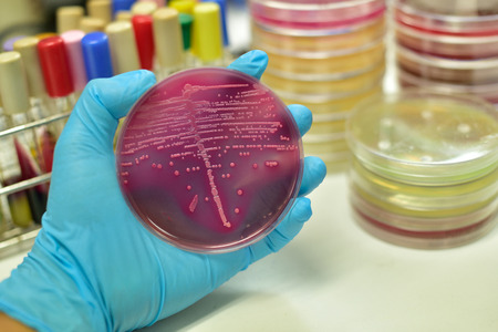 ecoli: Colony of bacteria in culture medium plate
