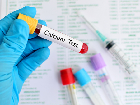 Calcium test Stock Photo