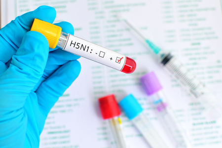 h5n1: H5N1 influenza positive Stock Photo