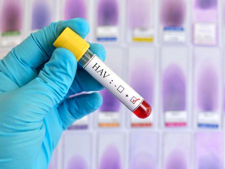 hepatitis: Hepatitis A virus HAV positive