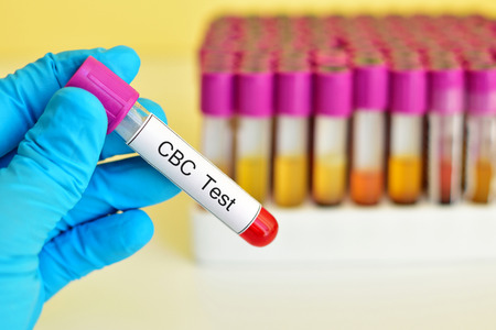 cbc: Blood for complete blood count CBC test