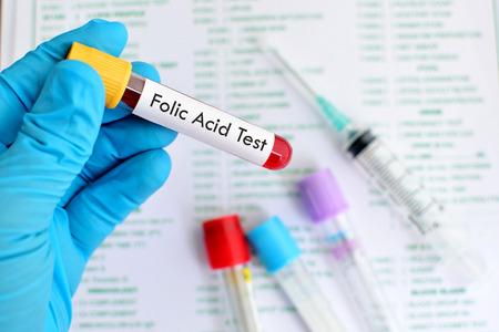 thiamine: Blood for folic acid test