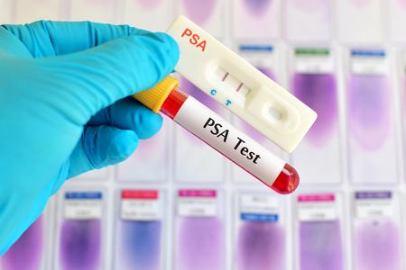 specific: PSA test Stock Photo