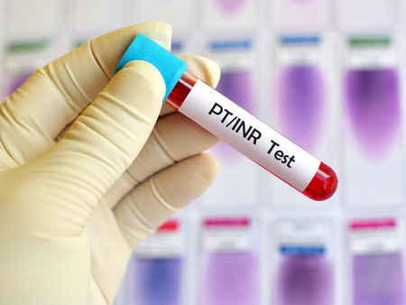citrate: PTINR test
