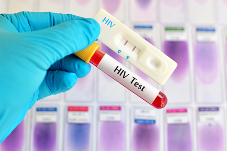 sexually transmitted disease: HIV test