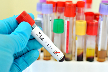lab test: Blood sample positive with Zika virus
