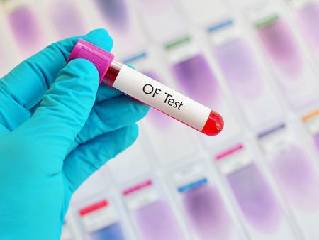 osmotic: Blood for OF test