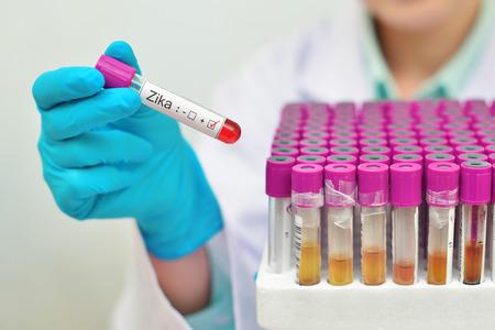 blood test: Zika virus Stock Photo