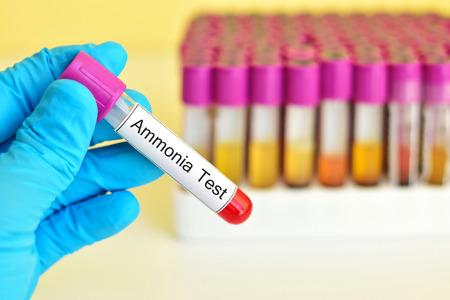 amoniaco: La sangre para la prueba de amoniaco