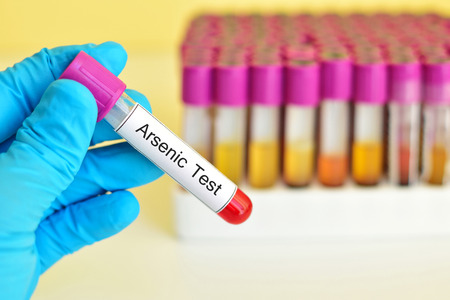 Blood for arsenic test Stock Photo