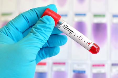 Allergy positive blood sample