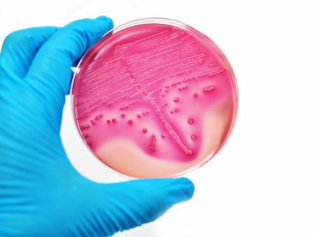 ecoli: Bacteria colony in culture medium plate Stock Photo