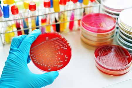 diphtheria: Colonies of bacteria in culture medium plate