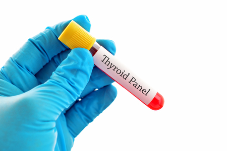 hypothyroidism: Blood sample for thyroid panel test Stock Photo