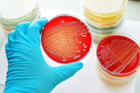 colonies: Colonies of bacteria in culture medium plate