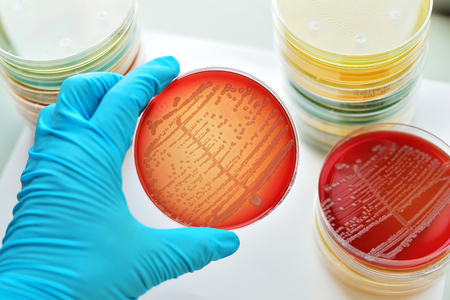 Colonies of bacteria in culture medium plate