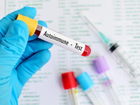 autoimmune: Blood sample for autoimmune disease test Stock Photo