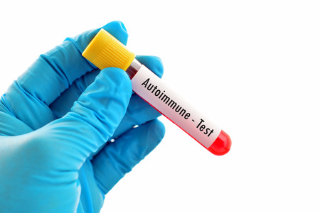 Blood sample for autoimmune disease test Banco de Imagens