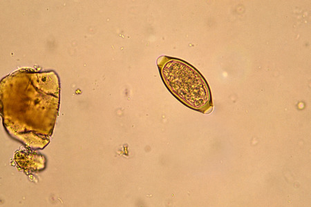 fecal: Egg of Trichuris trichiura in stool
