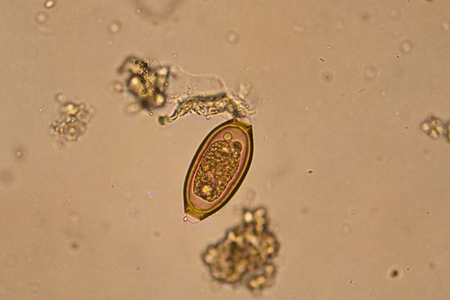 protozoa: Egg of Trichuris trichiura in stool