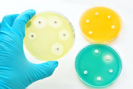 Antimicrobiële gevoeligheid testen in petrischaal Stockfoto