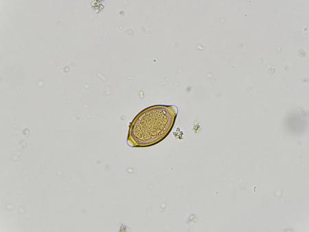 micro organism: Egg of Trichuris trichiura in stool, analyze by microscope