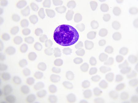 Atypical lymphocyte in blood smear